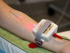 Haemo Laser Therapie