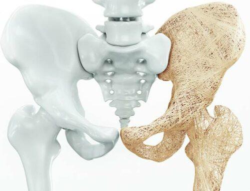 Osteoporose früh erkennen