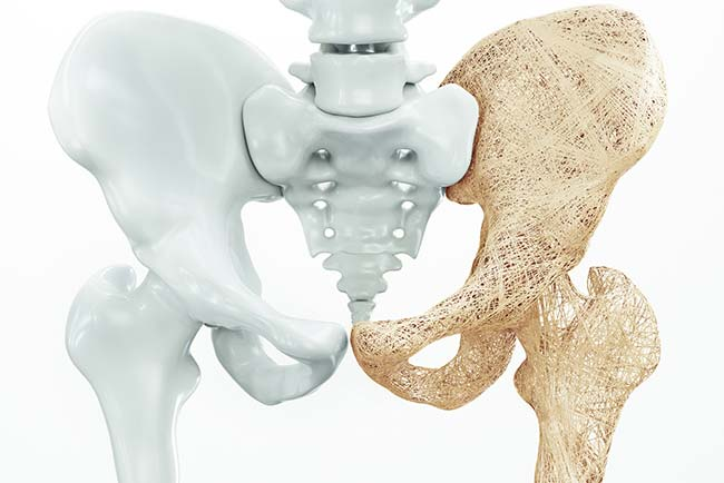 Park-Igls-Osteoporose-fb